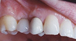 Today's Dentistry - After dental implant - No missing teeth