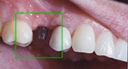 Today's Dentistry - Exposed post before dental implant