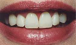 Today's Dentistry Gibsonia - Tooth Whitening After