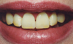 Today's Dentistry Gibsonia - Tooth Whitening Before