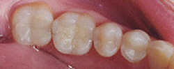 Today's Dentistry - Tooth colored fillings in teeth look more natural than metal fillings