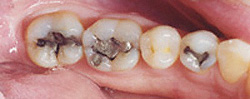Today's Dentistry - Unsightly metal fillings in teeth