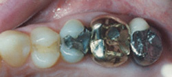 Today's Dentistry - Unsightly metal dental crowns