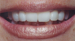 Today's Dentistry - After porcelain veneers - Teeth are straight and white