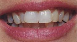 Today's Dentistry - Before porcelain veneers - Teeth are crooked and discolored
